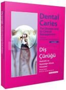 Diş Çürüğü - Dental Caries