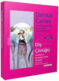 Diş Çürüğü - Dental Caries