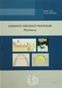 Hareketli Bölümlü Protezler - Planlama (Ciltli)
