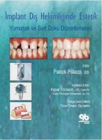 İmplant Diş Hekimliğinde Estetik