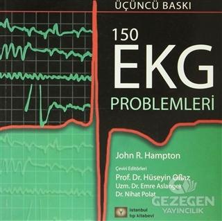 150 Ekg Problemleri