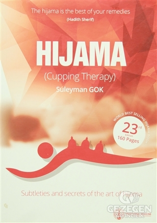 Hijama (Cupping Therapy)