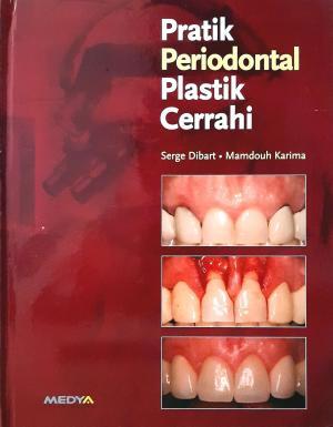Practical Periodontal Plastic Surgery (Pratik Periodontal Plastik Cerrahi)