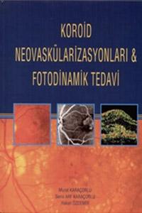 Koroid Neovaskülarizasyonları ve Fotodinamik Tedavi