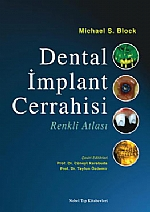 Dental İmplant Cerrahisi