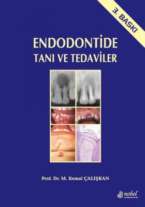Endodontide Tanı ve Tedaviler (Ciltli)