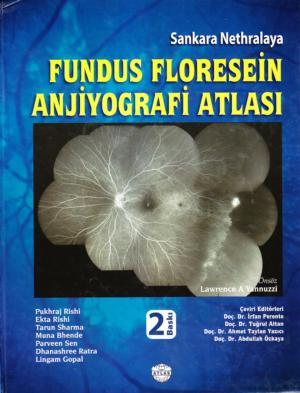 Fundus Floresein Anjiyografi Atlası