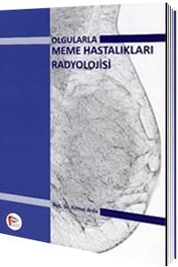 Olgularla Meme Hastalıkları Radyolojisi
