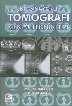 Bilgisayarlı Tomografi Çekim Teknikleri