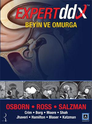 Expert DDX: Beyin ve Omurga