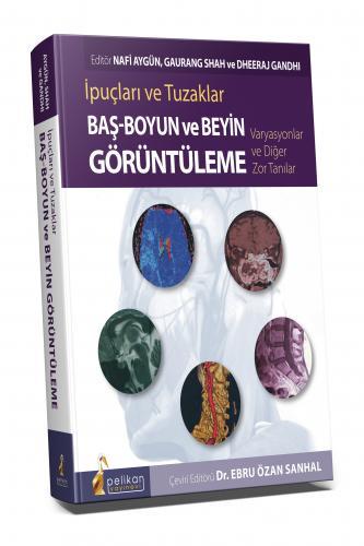 Baş - Boyun ve Beyin Görüntüleme İpuçları ve Tuzaklar Varyasyonlar ve Diğer Zor Tanılar
