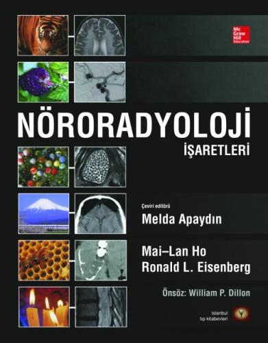 İstanbul Medikal Nöroradyoloji İşaretleri